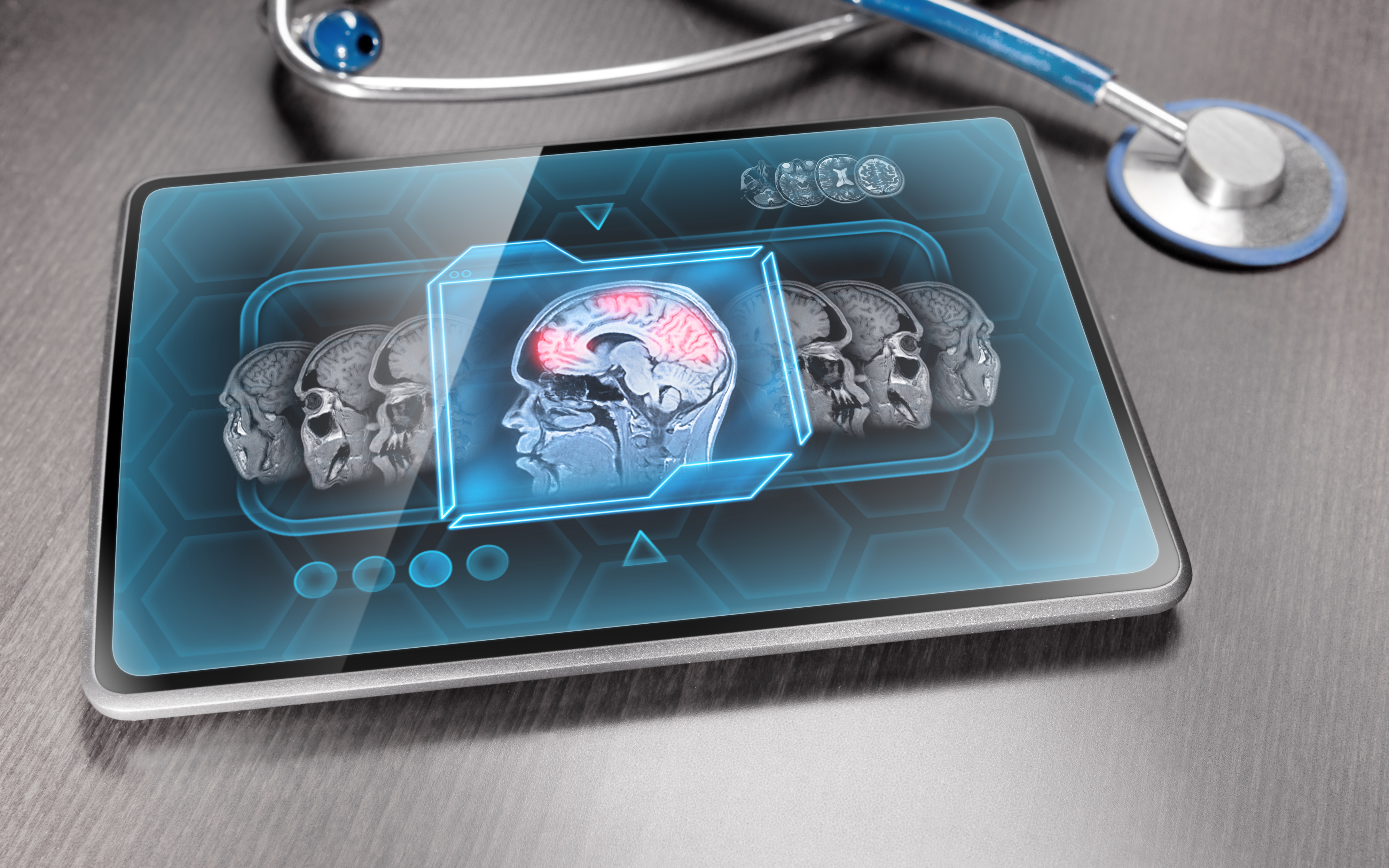 Scan of brain activity displayed on modern medical tablet